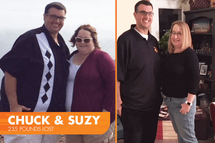 Chuck and Suzy's Profile by Sanford Weight Loss Journey. Side-by-side before and after photos.