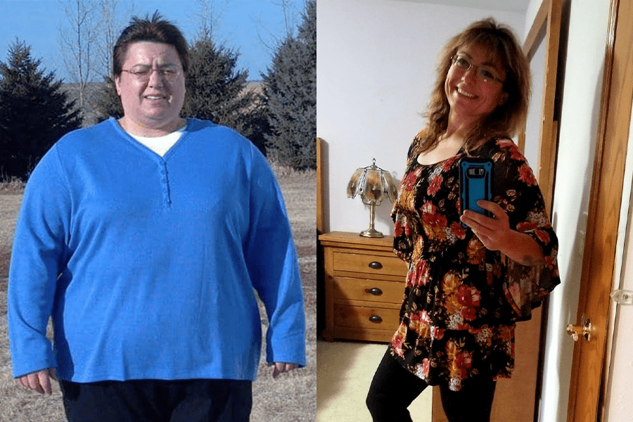 Julie's Profile Weight Loss Journey