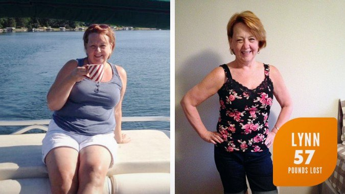 Lynn's Profile by Sanford Weight Loss Journey. Side-by-side before and after photos.