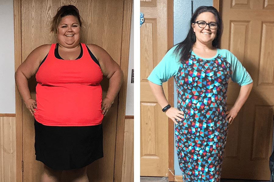 Before and After weight loss photo of Karlee, Profile member.